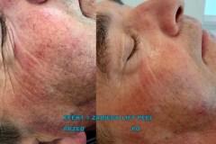 centrum-kosmetologii-mediskin-efekt-zabiegu-liftpeel