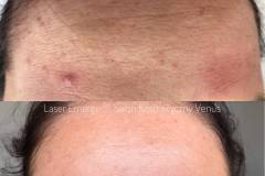 centrum-kosmetologii-mediskin-emerge-zmarszczki