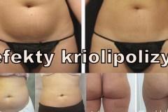 centrum-kosmetologii-mediskin-kriolipoliza-odchudzanie