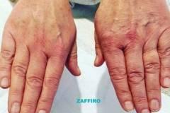centrum-kosmetologii-mediskin-zaffiro-dłonie